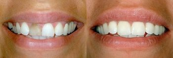 Smile Gallery - Millenia Dental, Chula Vista Dentist