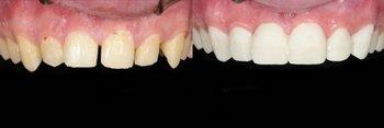 Smile Gallery - Millenia Dental, Chula Vista Dentist