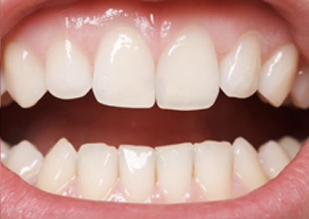 Cosmetic Bonding  - Millenia Dental, Chula Vista Dentist