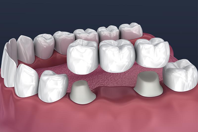 Crowns and Bridges, Inlays and Onlays  - Millenia Dental, Chula Vista Dentist