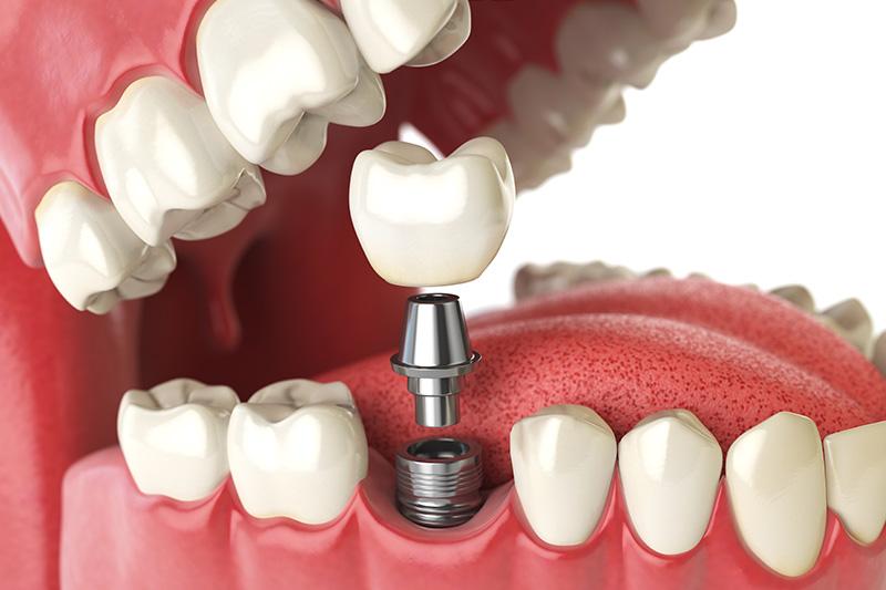 Dental Implants - Millenia Dental, Chula Vista Dentist