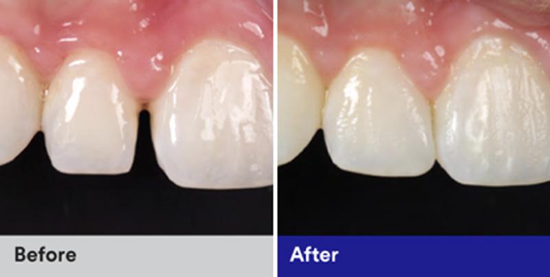 BioClear Diastema Closure and Black Triangle Closure  - Millenia Dental, Chula Vista Dentist