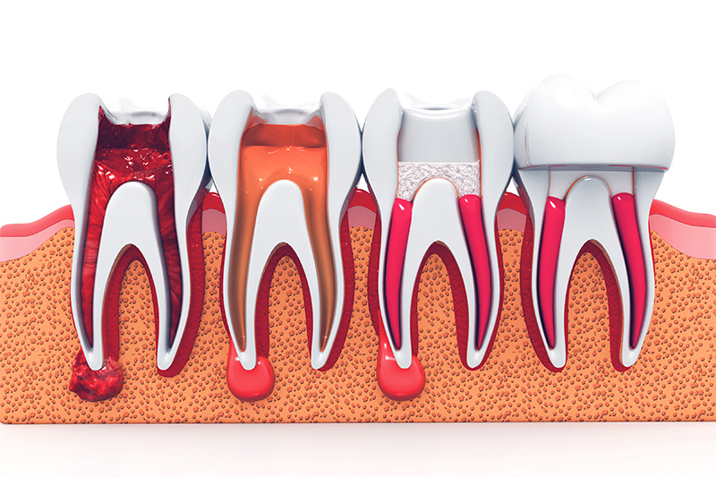 Root Canal Therapy  - Millenia Dental, Chula Vista Dentist