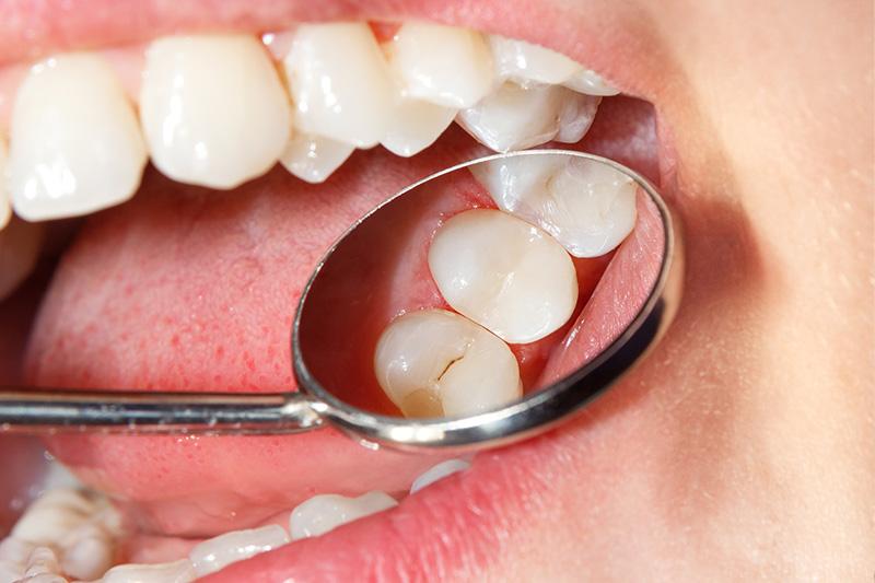Tooth Colored Composite Fillings  - Millenia Dental, Chula Vista Dentist