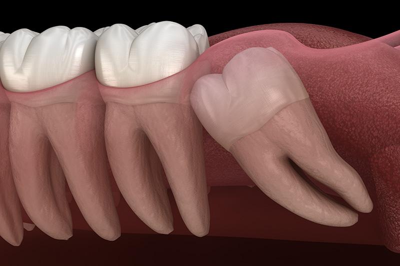 Wisdom Teeth Extractions (with Sedation)  - Millenia Dental, Chula Vista Dentist